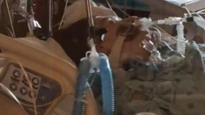 Dokter Muda Tewas karena Covid-19 hingga Pendarahan Otak, Berbulan-bulan Tidak Ganti Masker