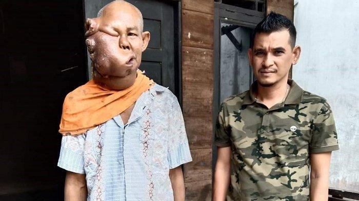 Umar, Penderita Tumor Ganas Dirujuk ke RSUDZA Banda Aceh, Dibantu Amat Lembeng Anggota DPRK Atim