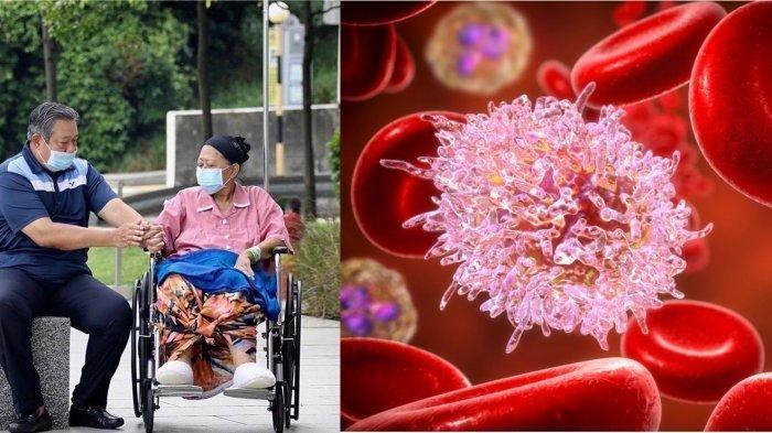 Kanker Darah Renggut Nyawa Ani Yudhoyono, Waspada Gejala dan Makanan Ini Pemicunya