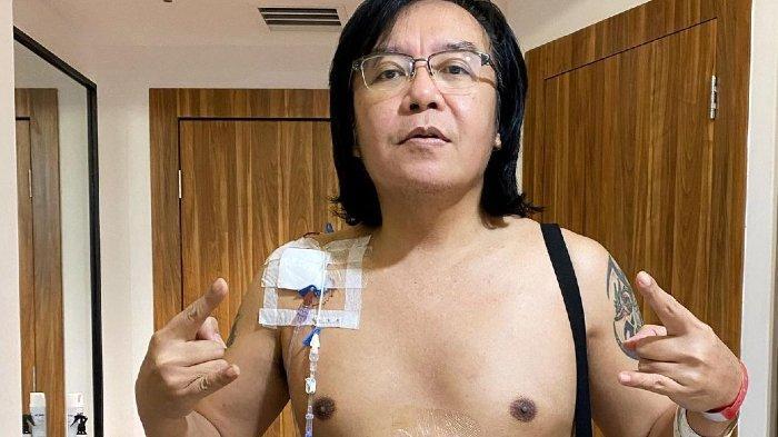 Idap Kanker Langka dan Harus Jalani Kemoterapi, Ari Lasso Ungkap Tak akan Tampil di Televisi Lagi