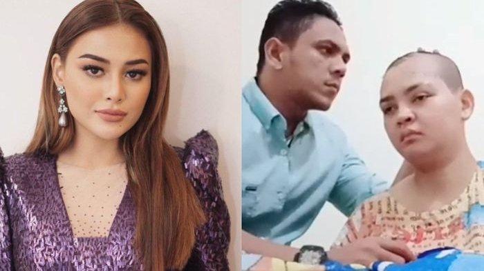 Kisah Pria Aceh Merawat Istri Viral, Aurel Hermansyah Diam-diam Kirim Satu Unit Sepmor Baru