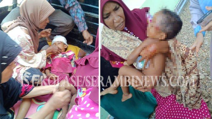 Dua Bocah Aceh Timur Dianiaya oleh Ayahnya Pakai Gagang Cangkul sampai Berdarah-darah dan Pingsan
