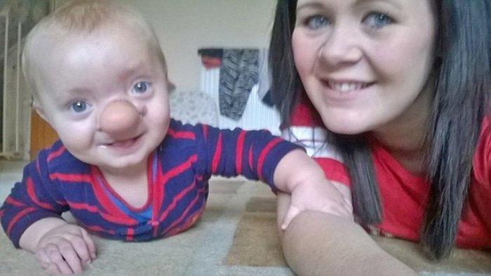 Kisah Bayi Terlahir dengan Hidung Besar, Derita Tumor Ganas,Begini Kondisinya Usai Jalani Operasi