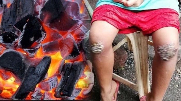 Kronologi Bocah 8 Tahun Dihukum Ibunya Berlutut di Bara Api, Kondisinya Mengenaskan