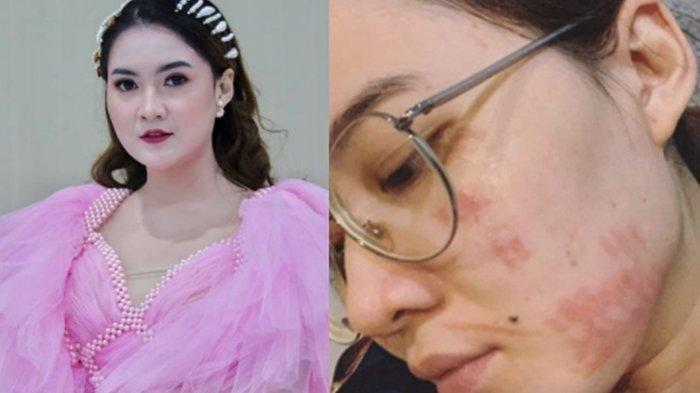 Sempat Digigit Serangga, Wajah Cantik Nella Kharisma Istri Dory Harsa Tiba-tiba Penuh Bercak Merah