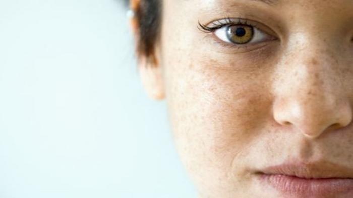 5 Masker Khusus untuk Hilangkan Bintik-bintik Hitam di Wajah dengan Bahan Alami