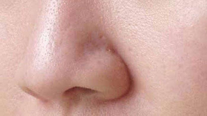 Simak, 8 Hal Buruk yang Membuat Pori-pori Wajahmu Makin Besar, Apa Saja?