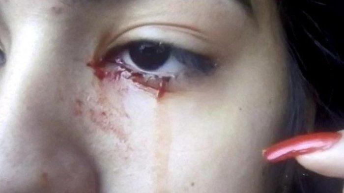 Gadis 15 Tahun Ini Menangis Keluarkan Air Mata Darah, Dokter Kesulitan Temukan Penyebabnya
