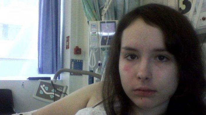 Gagal Ginjal Total Selama Pandemi Corona, Gadis Ini MintaBantuan Melalui Media Sosial
