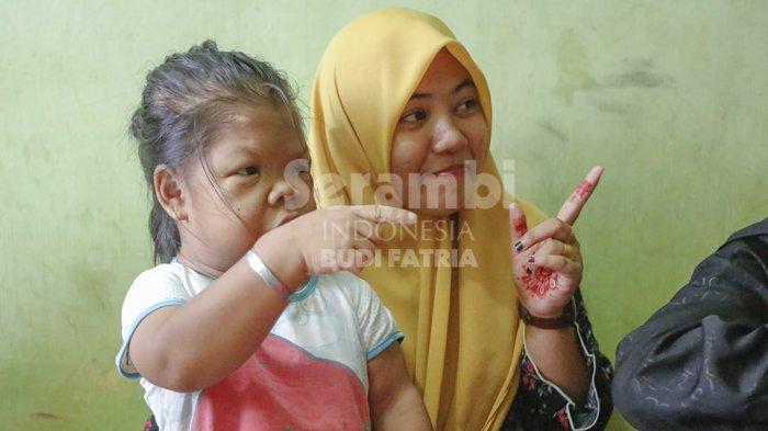 FOTO-FOTO : Gadis Bertubuh Mungil di Meureudu Pidie Jaya - gadis-mungil-pidie-jaya3.jpg