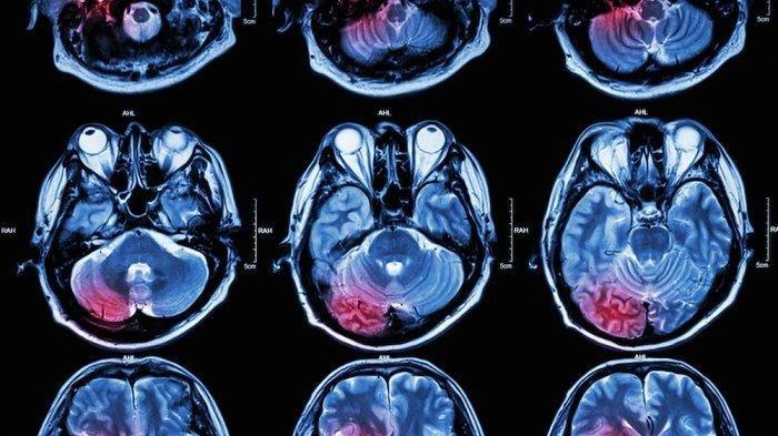 Tanda-tanda Seseorang Menderita Gegar Otak, Bicara Lambat hingga Mual Muntah