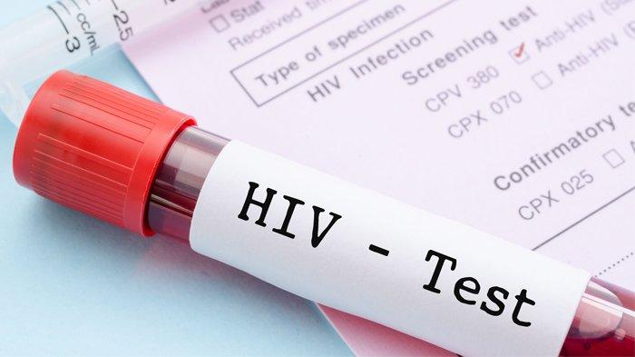 Waspadai Gejala HIV pada Pria, Demam Hingga Pembengkakan Kelenjar Getah Bening
