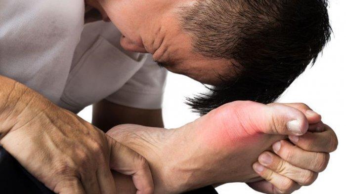 Jangan Sepelekan! Kenali Gejala Asam Urat, Segera Sembuhkan Dengan Obat Alami Ini