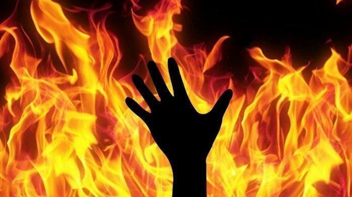 Kisah Wanita Indonesia Dibakar Hidup-Hidup Suaminya di Kuwait, Korban Alami Luka Bakar 30 Persen