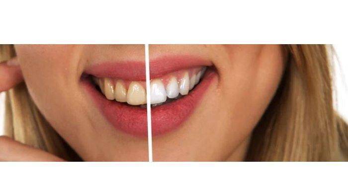 Jangan Diabaikan! Inilah 7 Kebiasaan Buruk yang Bisa Merusak Gigi, Termasuk Mengunyah Es Batu