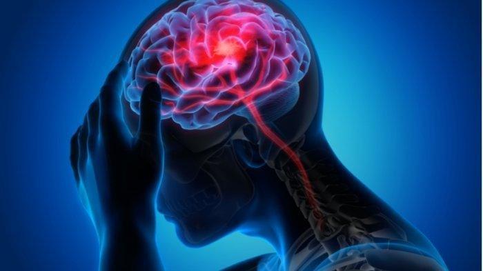 Jahe, Teh Kunyit hingga Rebusan Cengkeh, Ini 10 Rempah Mujarab Redakan Sakit Kepala