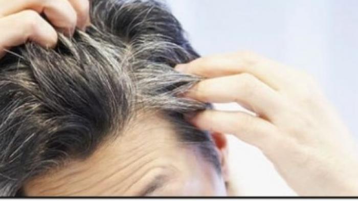 Dijamin Ampuh! 4 Bahan Alami Ini Bisa Dipakai untuk Menghilangkan Uban Tanpa Merusak Kulit Kepala