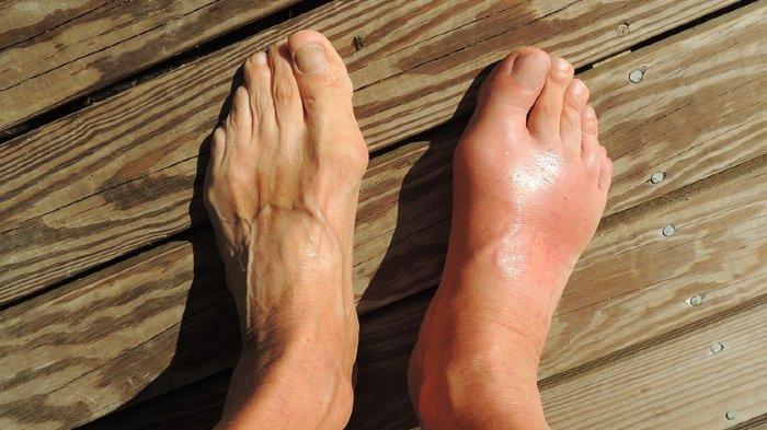 Ilustrasi kaki asam urat