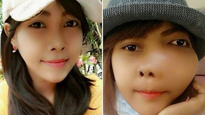 Gara-gara Sepelekan Sakit Gigi, Wajah Gadis Bangkok Ini Bengkak, Ternyata Idap Kanker Rahang
