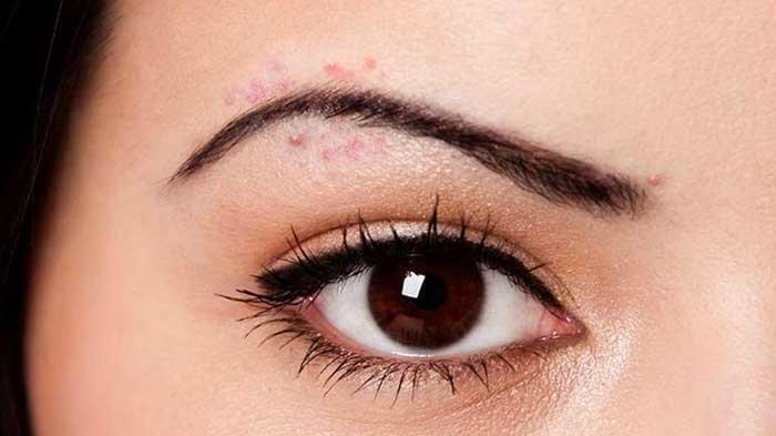 Ini 6 Tahapan Skincare untuk Menghilangkan Jerawat dan Bekasnya