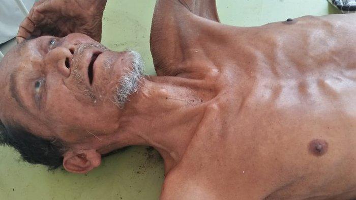 Memilukan. Kakek Renta tak Ada Keluarga di RSU Sigli, Tubuh Berbalut Tulang, Adakah yang Mengenal?