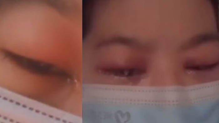 Ketagihan Pakai Softlens sampai Infeksi, Mata Seorang Gadis Dikorek Sampai Alami Buta Sementara