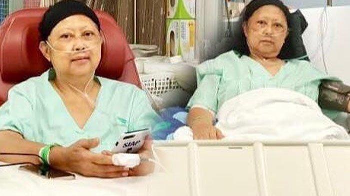 Ini Penyebab Wajah Ani Yudhoyono yang Idap Kanker Darah Menghitam, Bisa Hilang tapi Butuh Waktu Lama