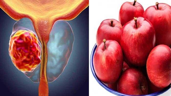 Simak 5 Manfaat Cuka Apel Bagi Kesehatan, Dapat Menurunkan Berat Badan
