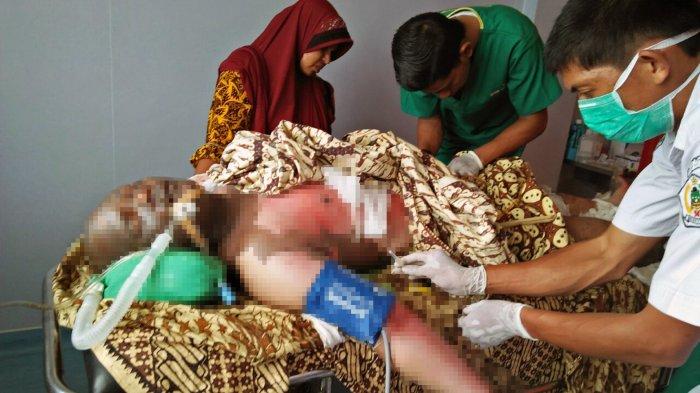 Satu Korban Terbakar Sumur Minyak Ranto Peureulak Dirujuk ke RSUD Cut Meutia