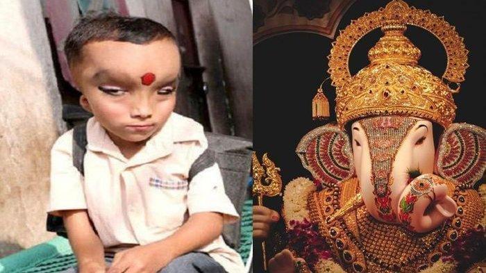 Lahir dengan Kelainan Fisik, Bocah Ini Justru Dipuja dan Disembah, Dianggap Titisan Dewa Ganesha