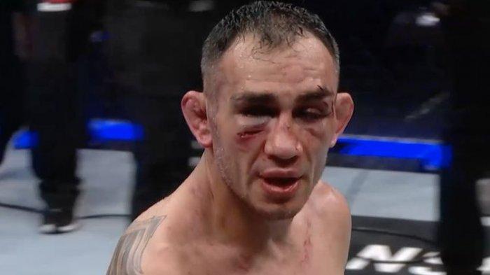 Rekan Satu Perguruan Mike Tyson Bikin Tony Ferguson Berhenti di UFC 262