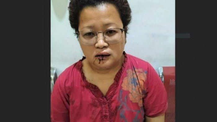 Ibu Lurah di Siantar Perlihatkan Mulut Keluarkan Darah, Mengaku Dihantam Oknum Babinsa TNI