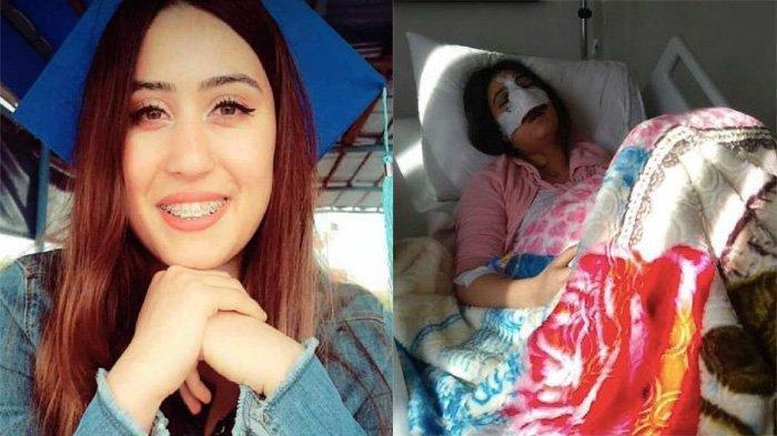 Gadis 24 Tahun Ini Meninggal Usai Operasi Plastik, Darah Keluar dari Hidung dan Mulut