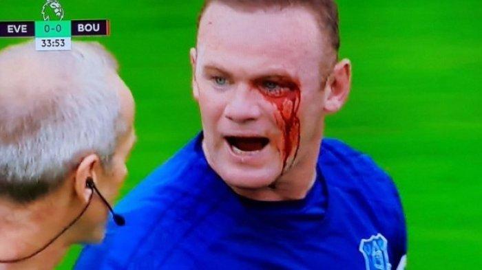 LIVE STREAMING - Everton vs Swansea City, Pukul 03.00 WIB, Nonton di SINI