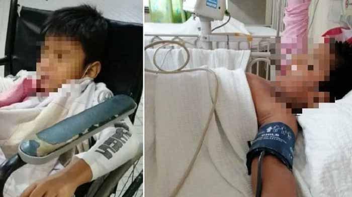 Orang Tua Khawatir Alat Kelamin Anak Cacat usai Sunat di Klinik, Jalani Penambalan Kulit Kemaluan