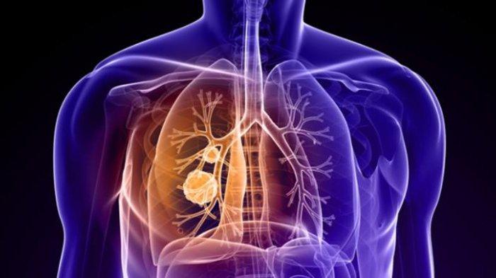 Cocok Bagi Perokok, Ini 7 Makanan Ampuh untuk Membantu Menghilangkan Nikotin dari Tubuh