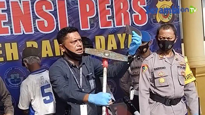 BREAKING NEWS - Kaki Warga Abdya Putus Kena Pisau Babat Rumput Miliknya