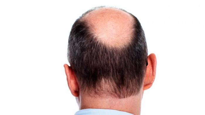 Studi di AS Sebut Pria Botak Berisiko Lebih Tinggi Terkena Covid-19, Begini Penjelasannya