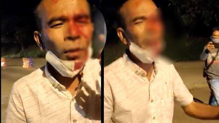 Pria Ini Ngaku Mata Buta Tertusuk saat Ribut di Posko PPKM Darurat, Petugas Ungkap Kejadiannya