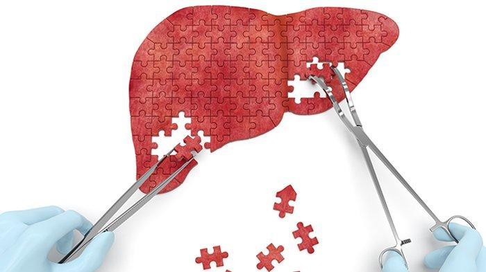 Yakinkah Anda Terbebas dari Hepatitis?