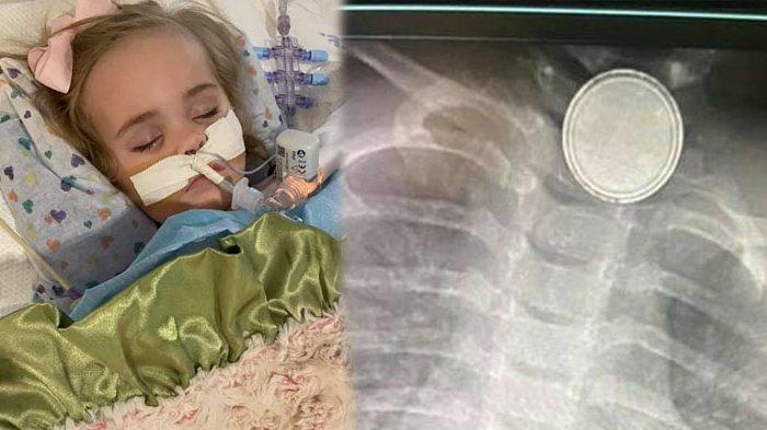 Bayi Ini Meninggal Setelah Lalui Banyak Operasi, Telan Baterai Jam hingga Tenggorokan Berlubang