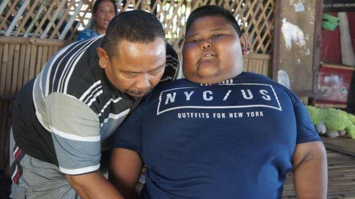 Bocah Obesitas dengan Berat 110 Kg Meninggal Dunia, Satia Putra Sempat Mengeluh Sakit pada Ibunya