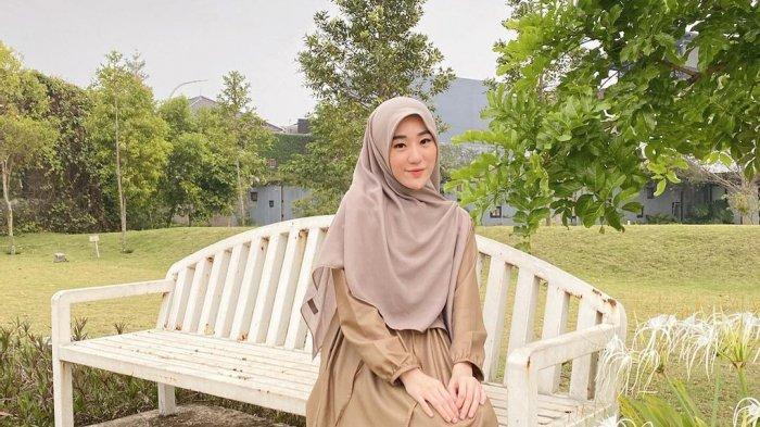 Potret Larissa Chou, Mantan Istri Alvin Faiz yang Dapat Tawaran Lamaran dari 200 Laki-Laki