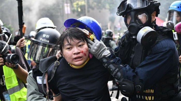 Bentrokan di Universitas Hong Kong, Demonstran Tulis Kata-kata Terakhir Kepada Keluarga