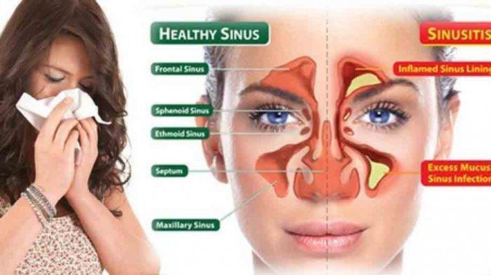 5 Pengobatan Alami untuk Infeksi Sinusitis Bisa Dilakukan di Rumah