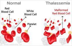 Masyarakat Diajak Putuskan Mata Rantai Penyakit Thalassemia