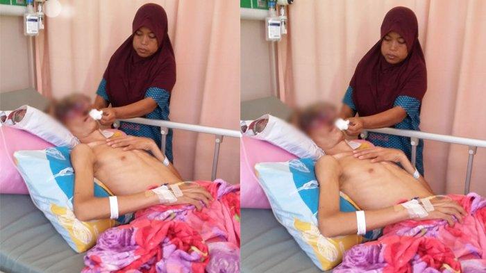 Kisah Sedih Penderita Tumor Ganas di Tamiang, Bermula dari Benjolan Kecil di Hidung