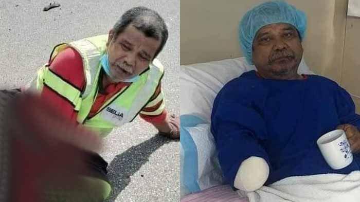 Viral Kakek Bekerja Perbaiki Jalan, Lalu Ditabrak Mobil sampai Tangan Diamputasi