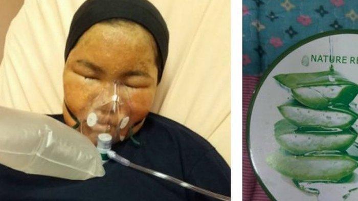 Gara Gara Pakai Skincare Aloe Vera Palsu Wanita Ini Dirawat Di Rumah Sakit Karena Wajahnya Melepuh Serambi Indonesia