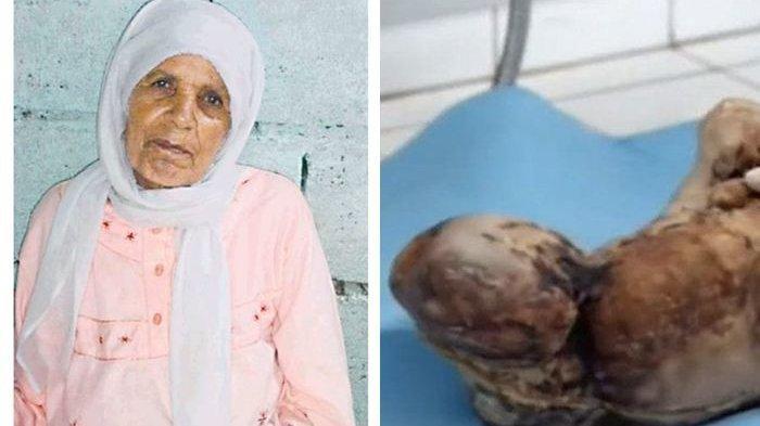 Mengerikan! Setelah Memendam Kehamilan Selama 46 Tahun, Wanita ini Melahirkan 'Bayi Mumi'